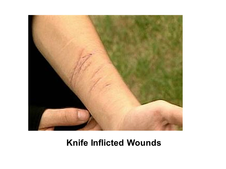 Knife Inflicted Wounds