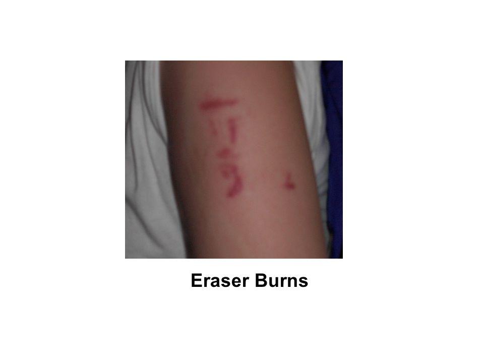 Eraser Burns