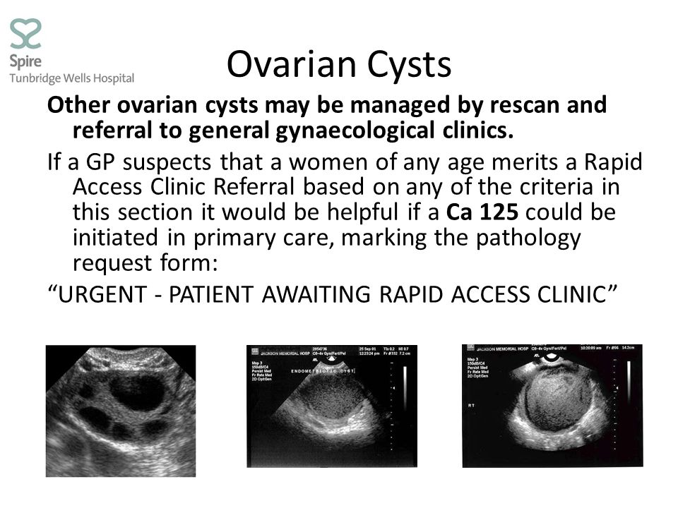 Ovarian Cysts Other ovarian cysts may be managed by rescan and referral to general gynaecological clinics.