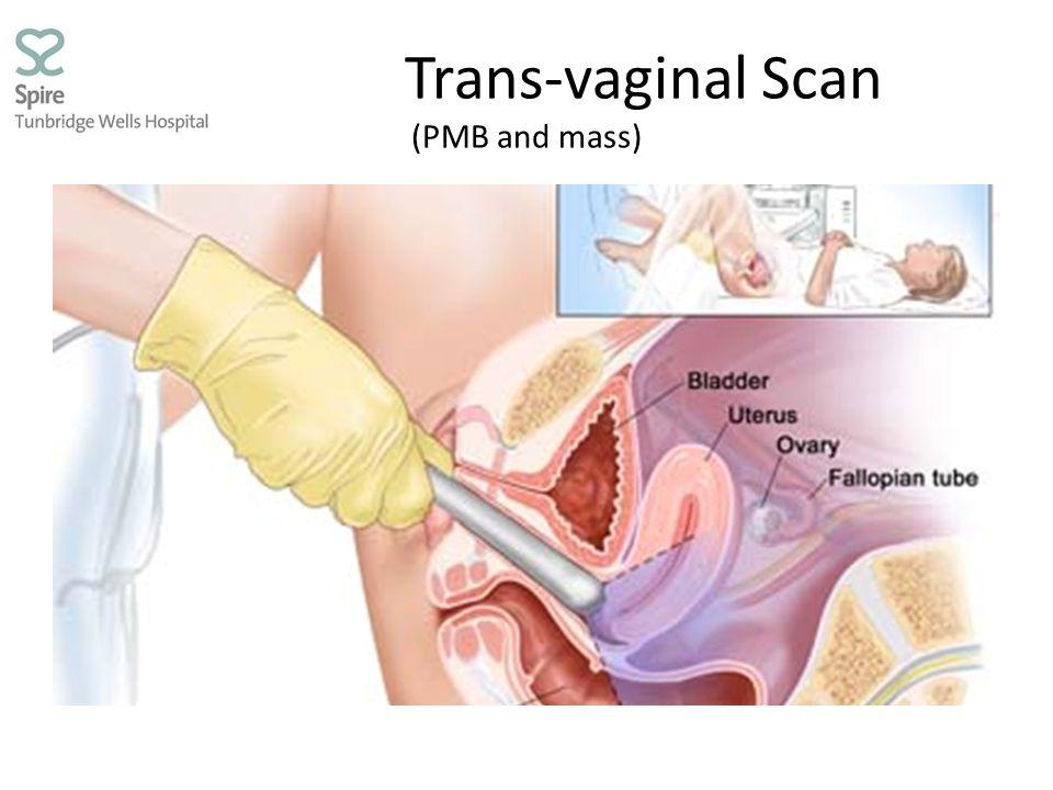 Trans-vaginal Scan (PMB and mass)