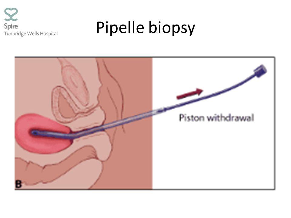 Pipelle biopsy