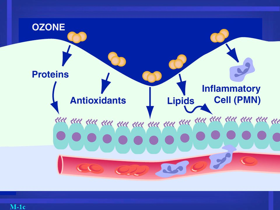 M-1c Ozone can cause inflammation