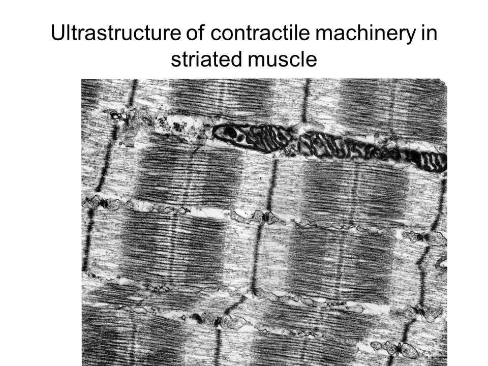 Ultrastructure of contractile machinery in striated muscle
