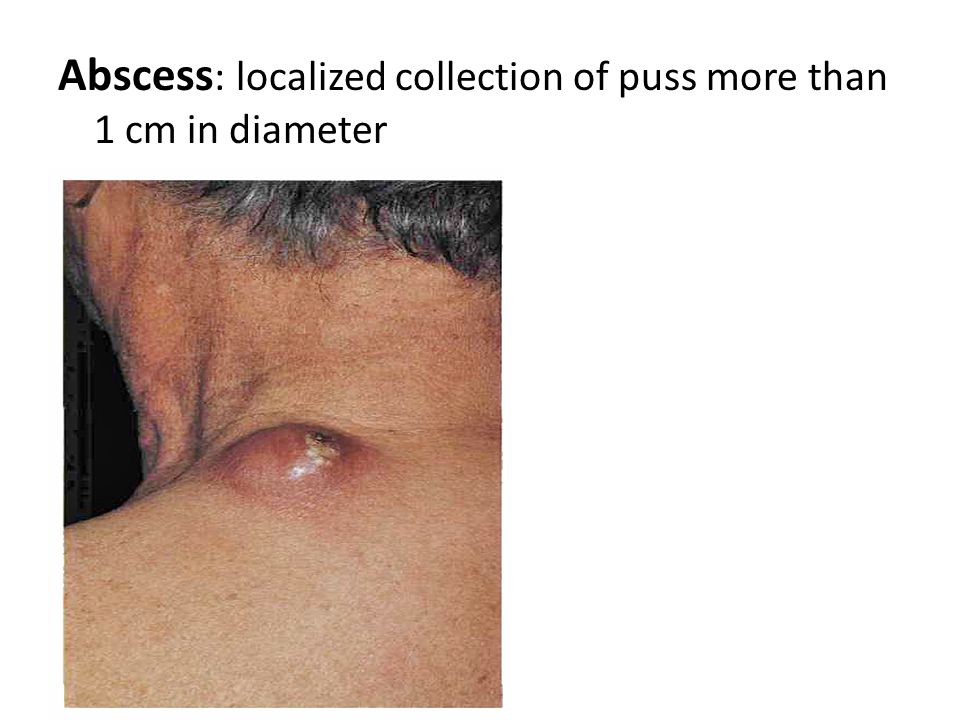 Abscess: localized collection of puss more than 1 cm in diameter