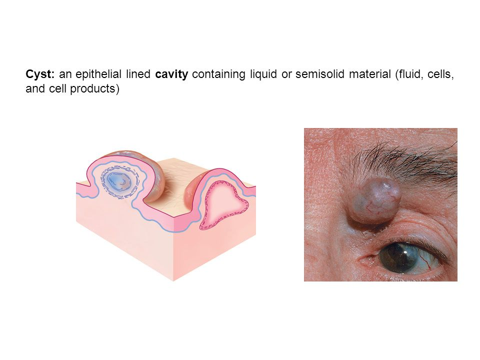 Cyst: an epithelial lined cavity containing liquid or semisolid material (fluid, cells, and cell products)