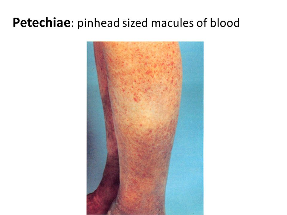 Petechiae: pinhead sized macules of blood