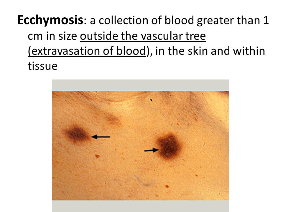 Ecchymosis: a collection of blood greater than 1 cm in size outside the vascular tree (extravasation of blood), in the skin and within tissue