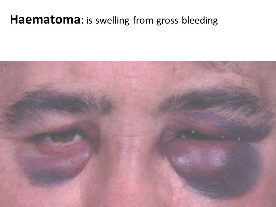 Haematoma: is swelling from gross bleeding