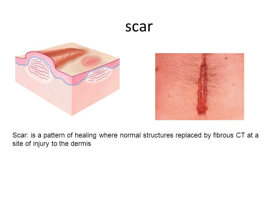 scar Scar: is a pattern of healing where normal structures replaced by fibrous CT at a site of injury to the dermis.