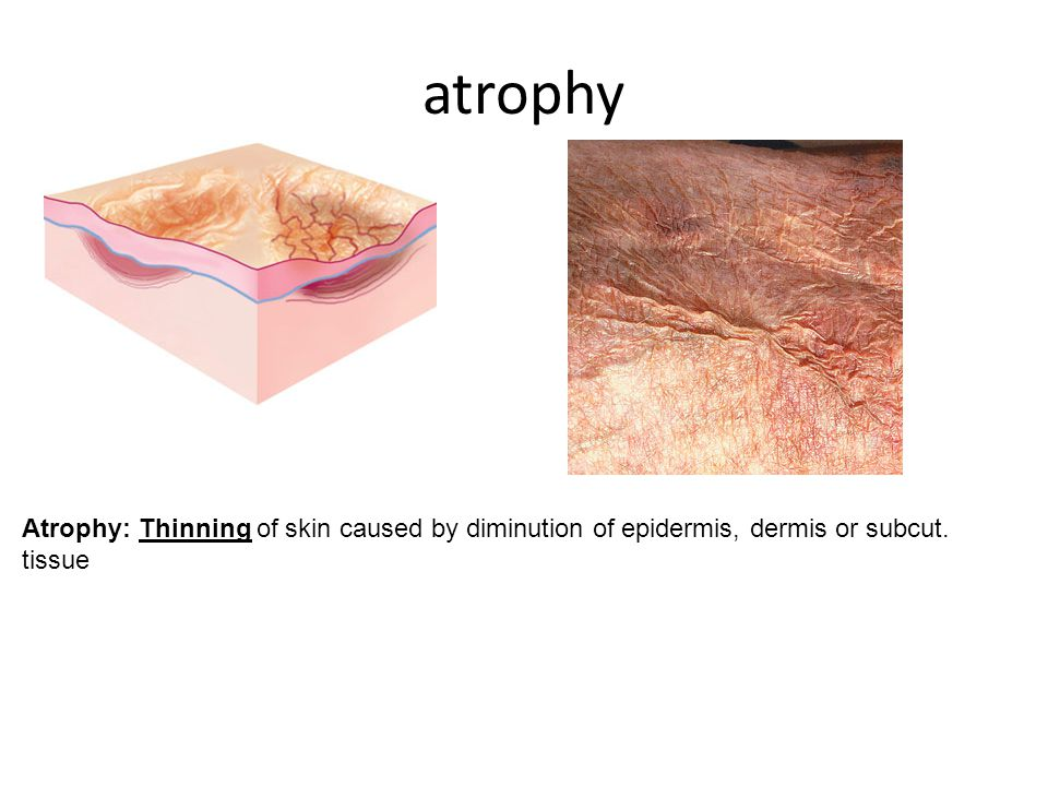 atrophy Atrophy: Thinning of skin caused by diminution of epidermis, dermis or subcut. tissue