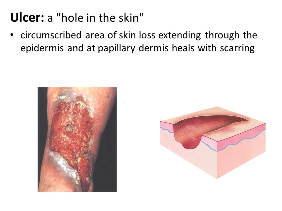 Ulcer: a hole in the skin