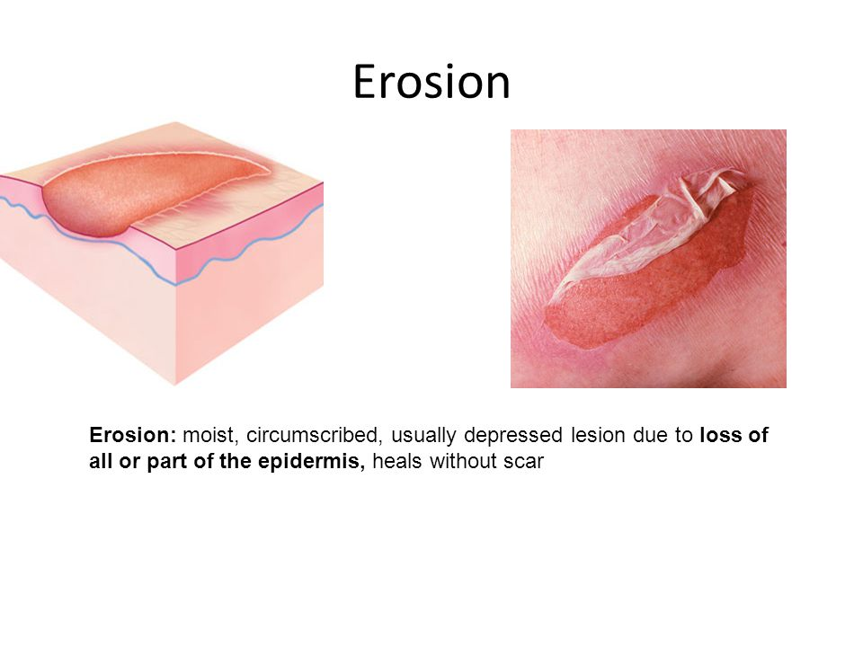Erosion Erosion: moist, circumscribed, usually depressed lesion due to loss of all or part of the epidermis, heals without scar.