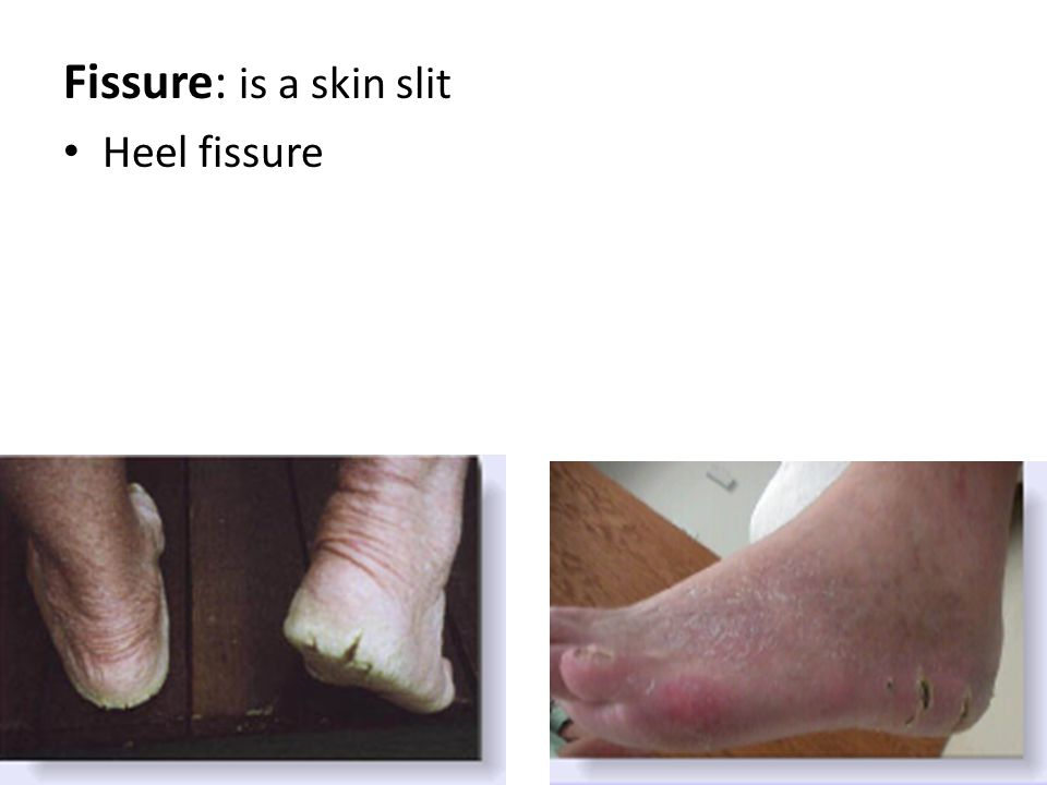 Fissure: is a skin slit Heel fissure