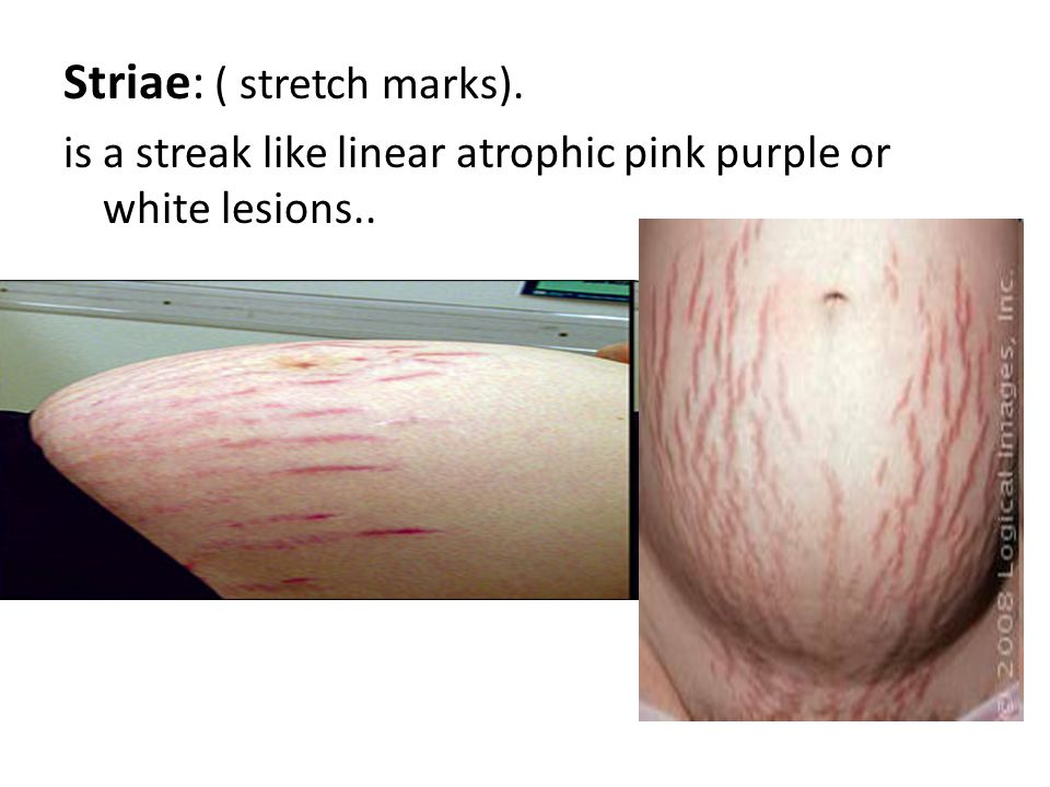 Striae: ( stretch marks).