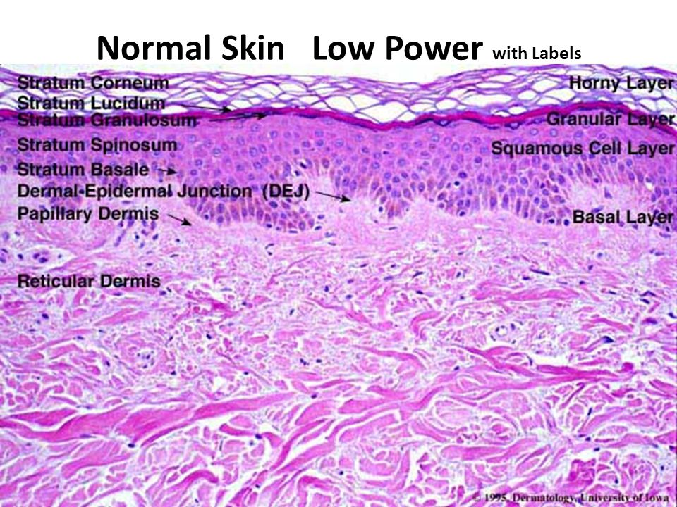 Normal Skin Low Power with Labels