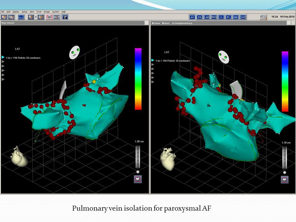 Pulmonary vein isolation for paroxysmal AF