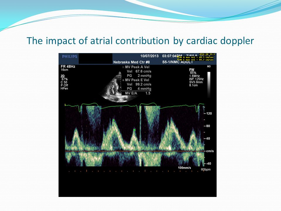 The impact of atrial contribution by cardiac doppler