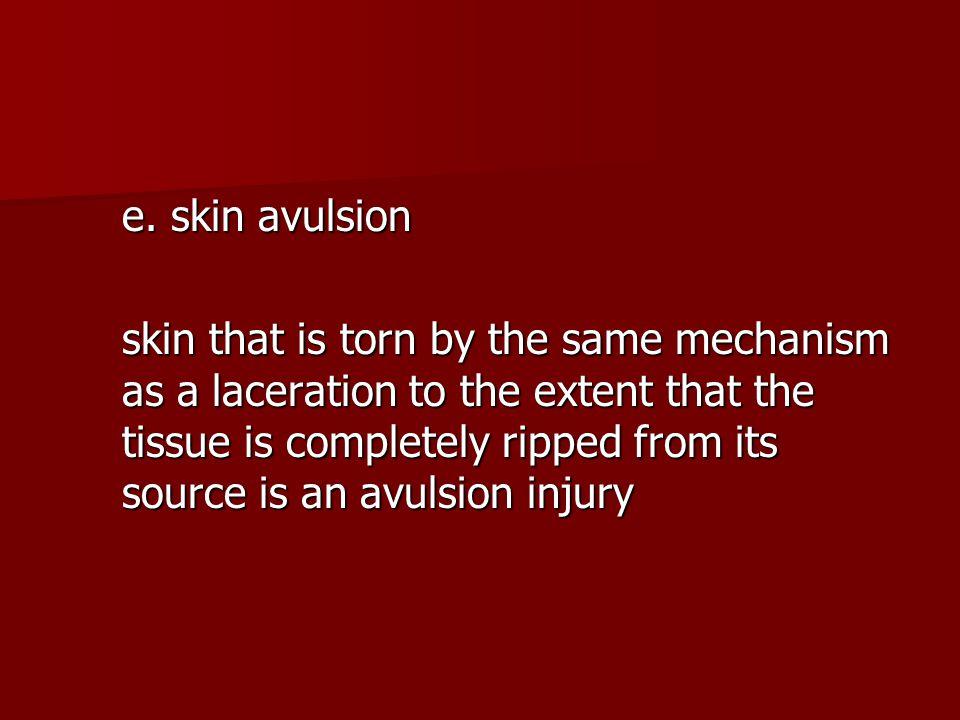 e. skin avulsion