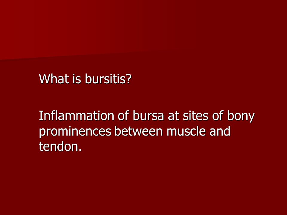 What is bursitis Inflammation of bursa at sites of bony prominences between muscle and tendon.