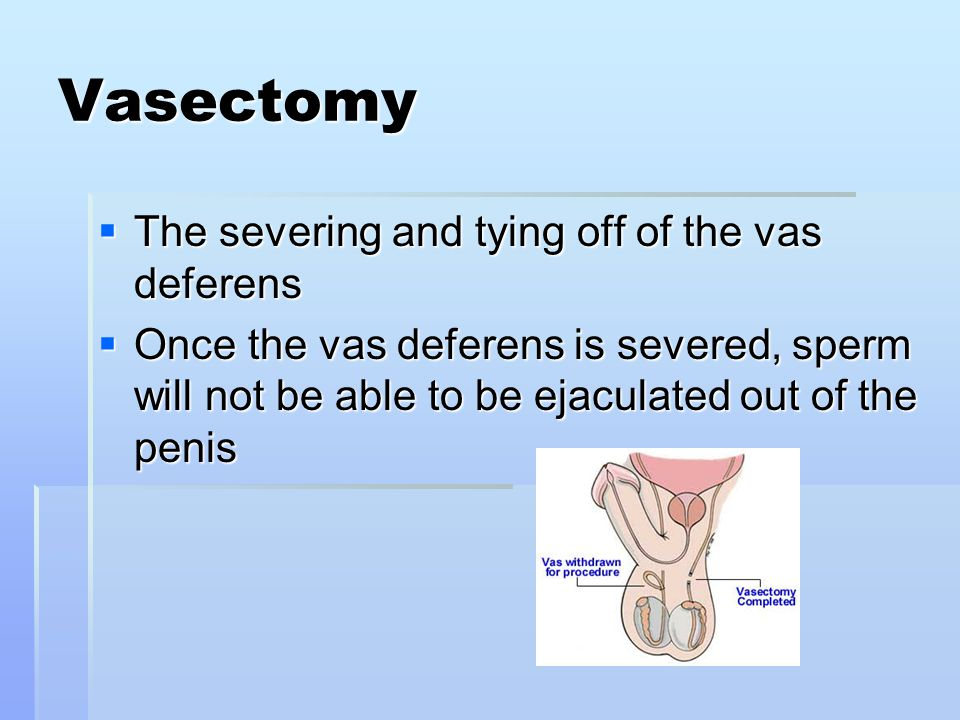 Vasectomy The severing and tying off of the vas deferens