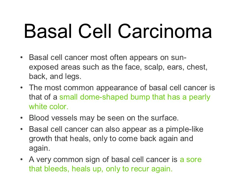 Basal Cell Carcinoma Basal cell cancer most often appears on sun-exposed areas such as the face, scalp, ears, chest, back, and legs.