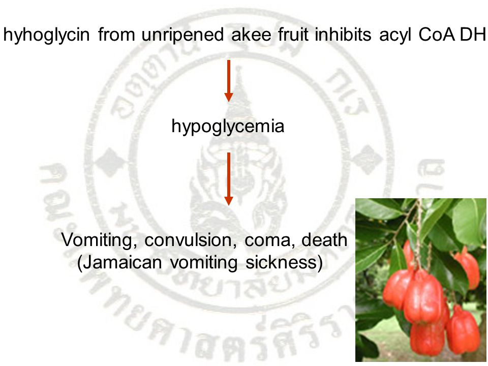 hyhoglycin from unripened akee fruit inhibits acyl CoA DH