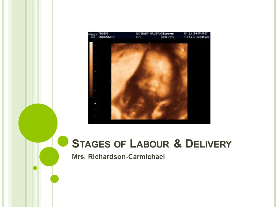 Stages of Labour & Delivery