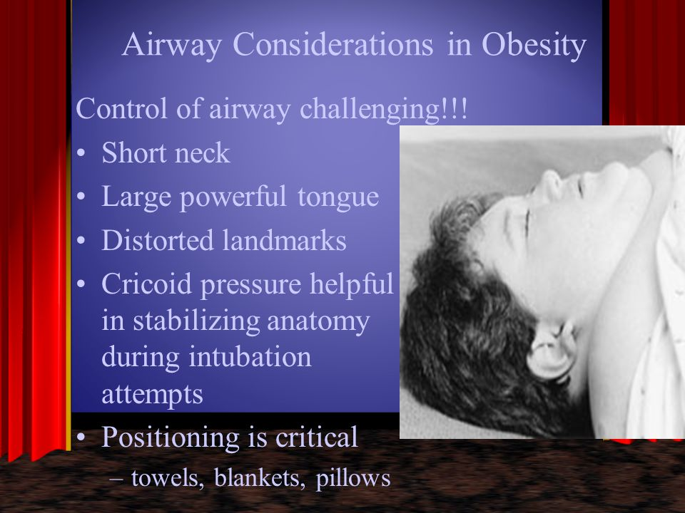 Airway Considerations in Obesity