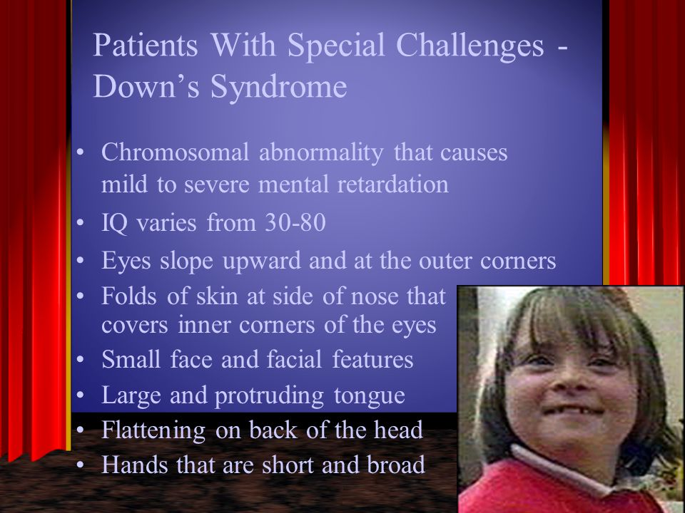 Patients With Special Challenges - Down's Syndrome