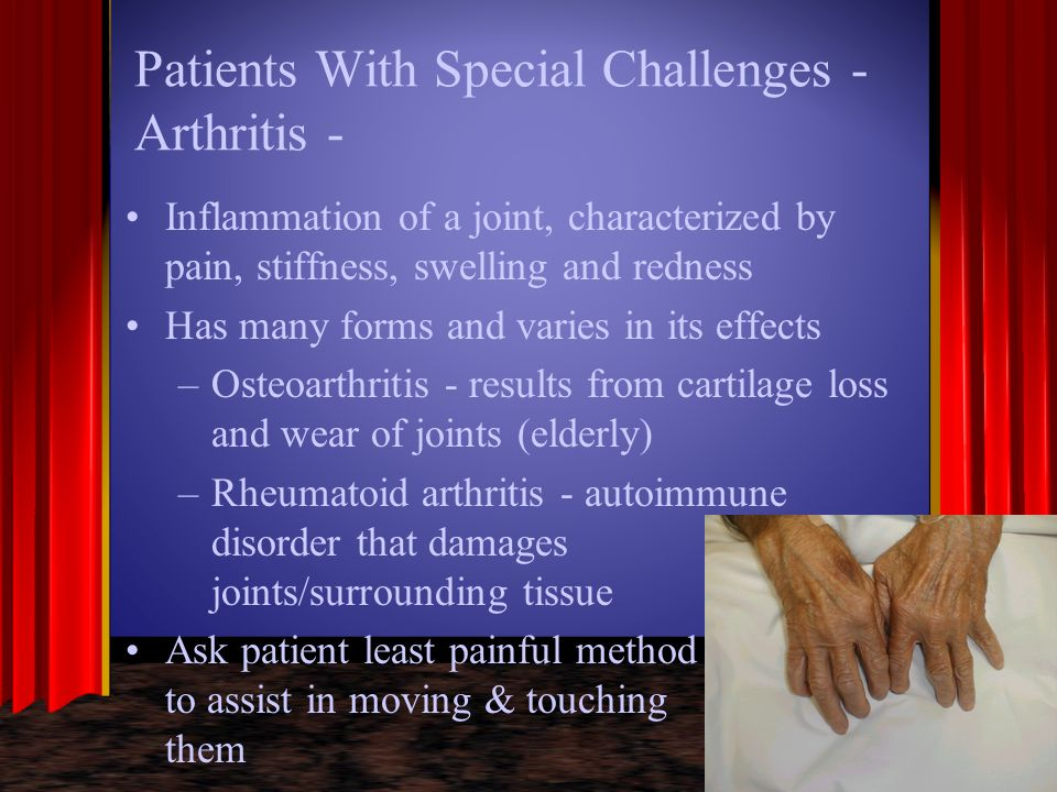 Patients With Special Challenges - Arthritis -