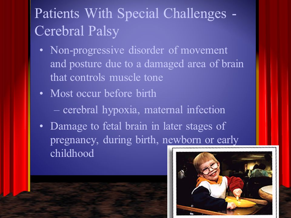 Patients With Special Challenges - Cerebral Palsy