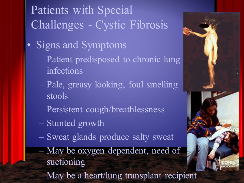 Patients with Special Challenges - Cystic Fibrosis