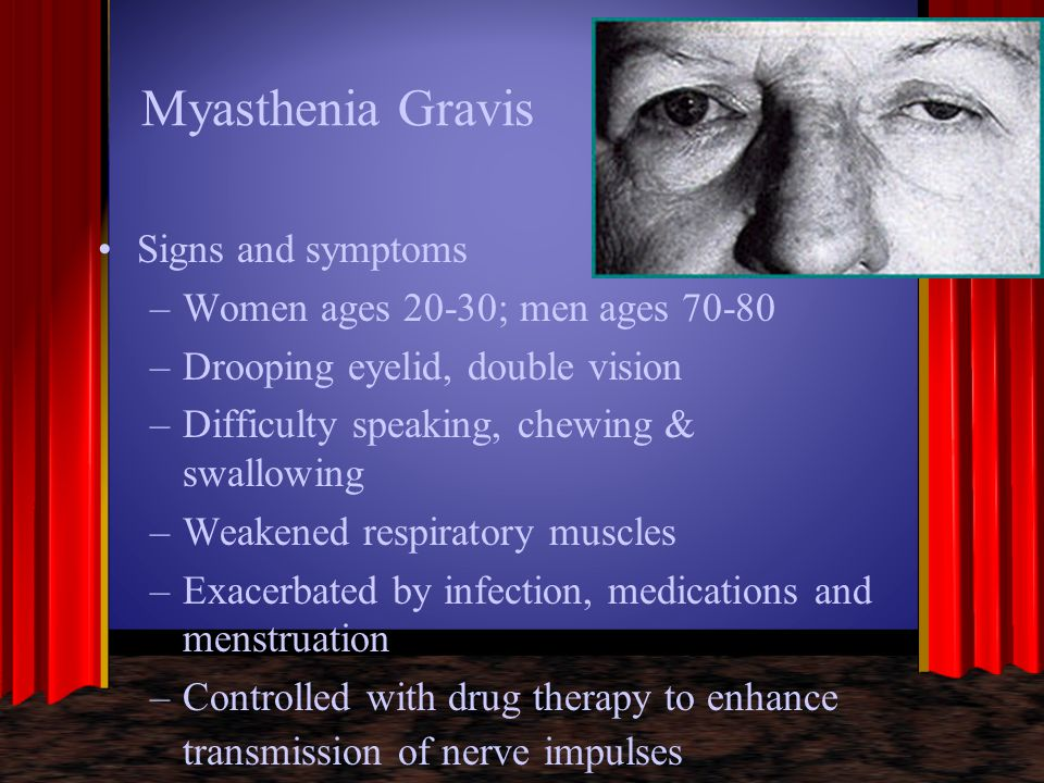 Myasthenia Gravis Signs and symptoms Women ages 20-30; men ages 70-80