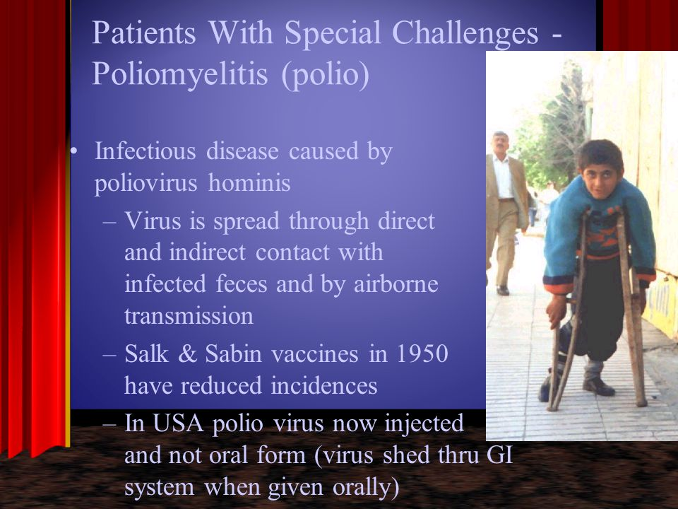 Patients With Special Challenges - Poliomyelitis (polio)