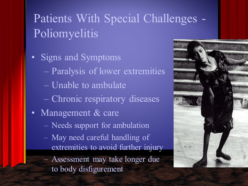 Patients With Special Challenges - Poliomyelitis