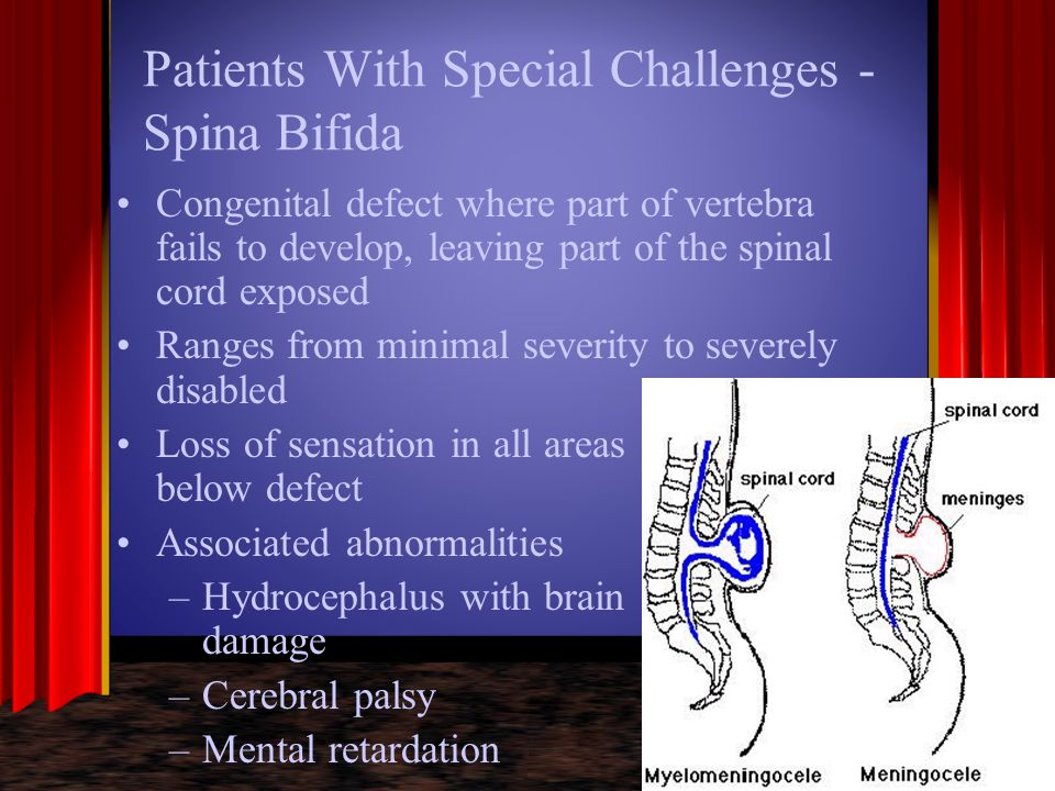 Patients With Special Challenges - Spina Bifida