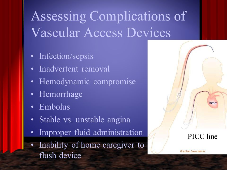 Assessing Complications of Vascular Access Devices