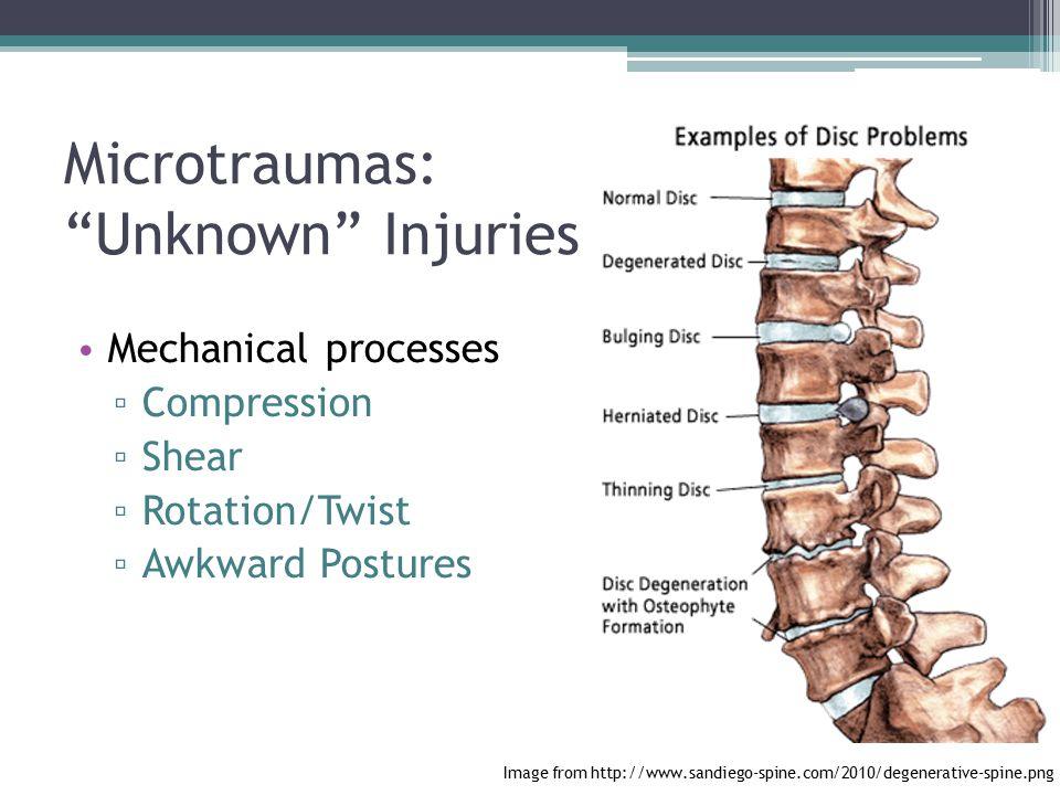 Microtraumas: Unknown Injuries