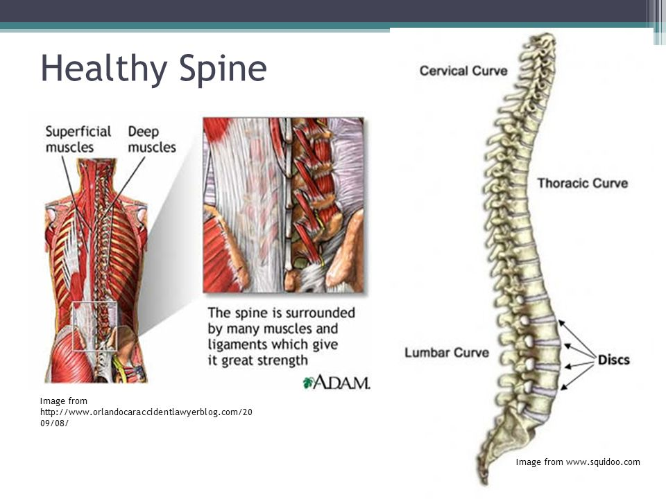 Healthy Spine Image from http://www.orlandocaraccidentlawyerblog.com/2009/08/ Image from www.squidoo.com.