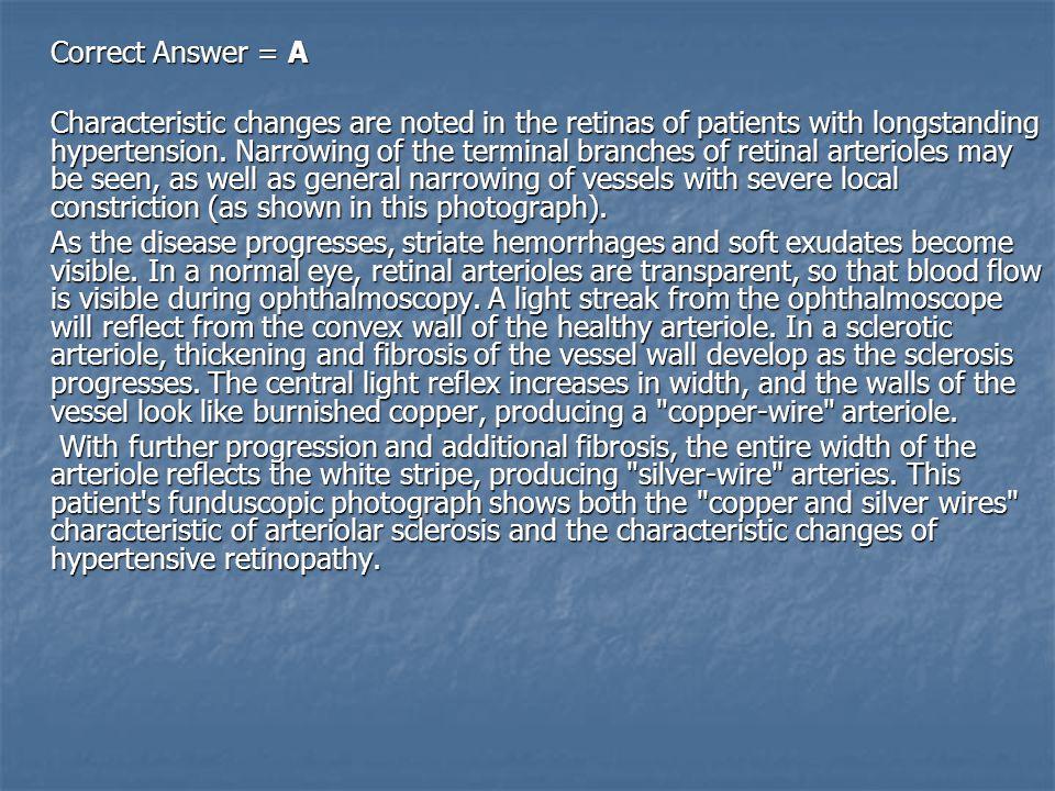 Correct Answer = A