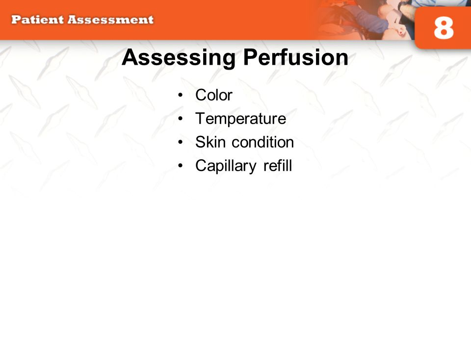 Assessing Perfusion Color Temperature Skin condition Capillary refill