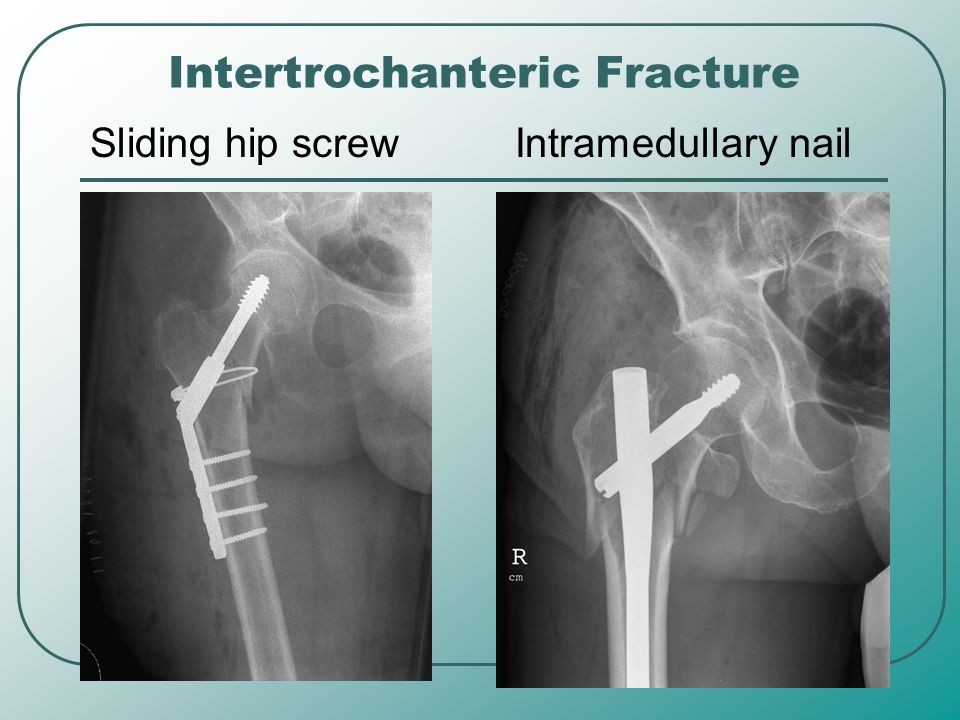 Intertrochanteric Fracture