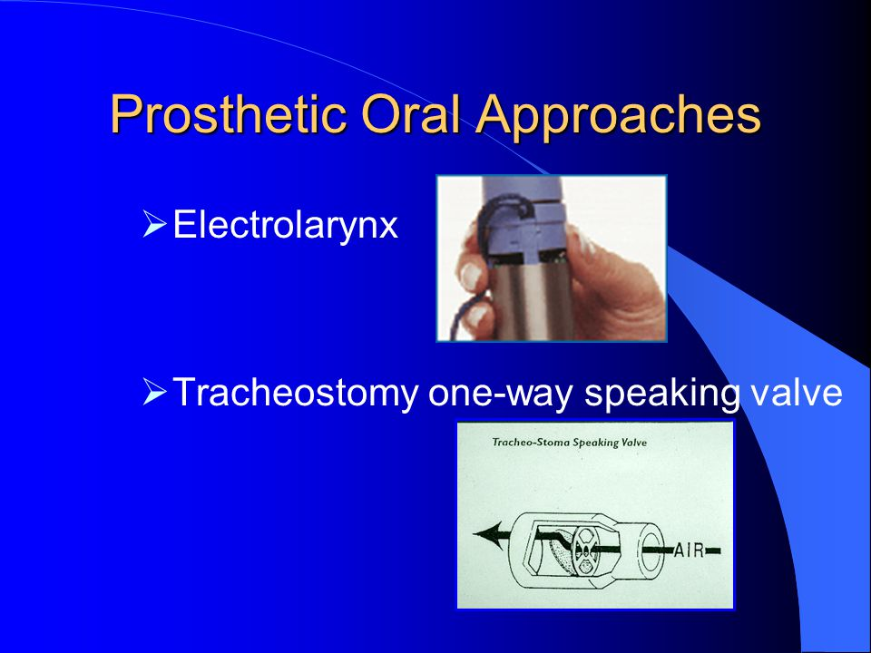 Prosthetic Oral Approaches
