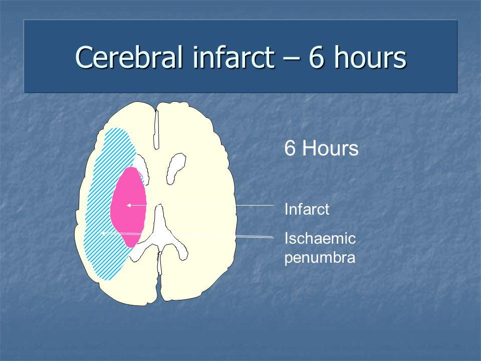 Cerebral infarct – 6 hours