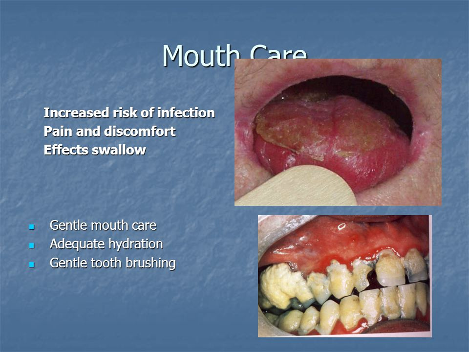 Mouth Care Increased risk of infection Pain and discomfort