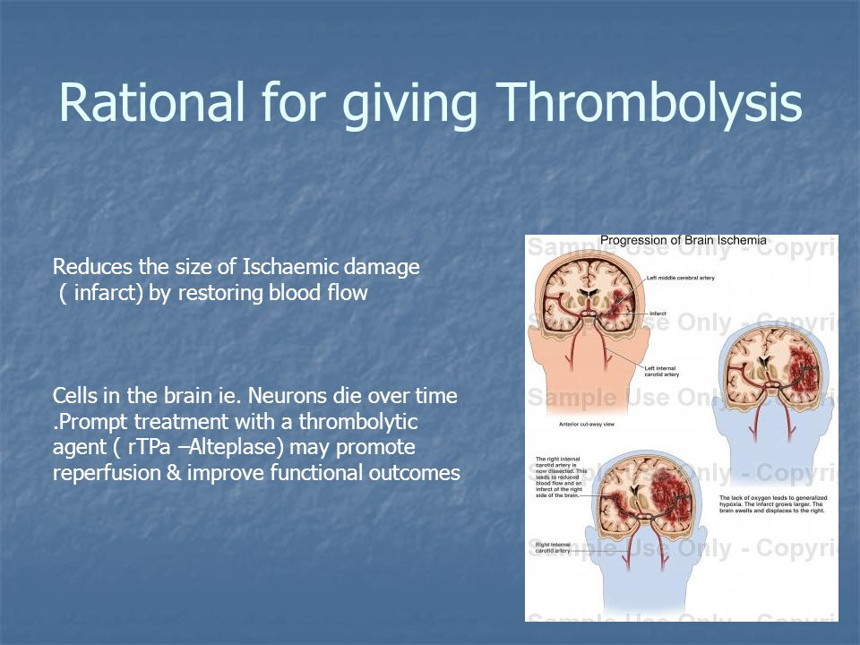Rational for giving Thrombolysis