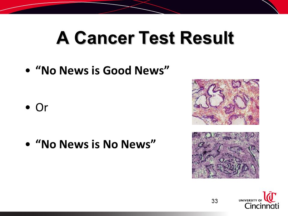 A Cancer Test Result No News is Good News Or No News is No News