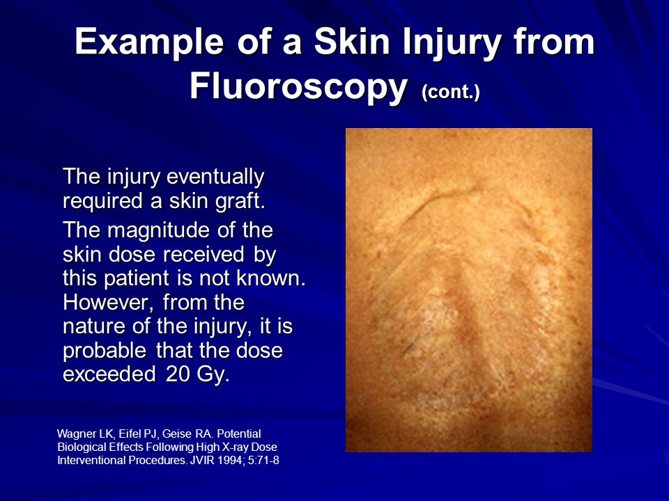 Example of a Skin Injury from Fluoroscopy (cont.)