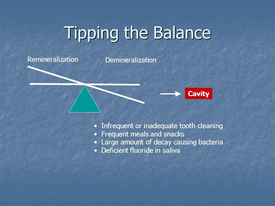 Tipping the Balance Remineralization Demineralization Cavity