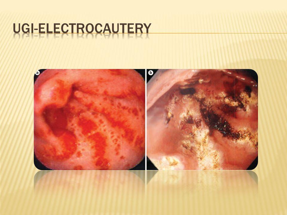 UGI-electrocautery Image credit: